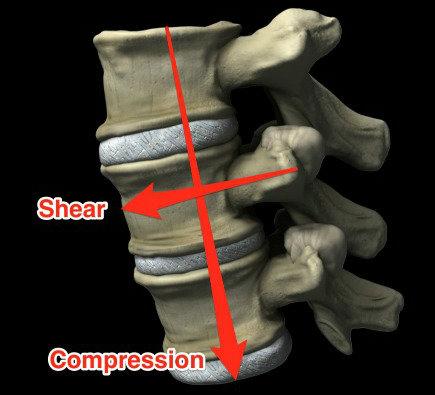 Optimizing Back Health