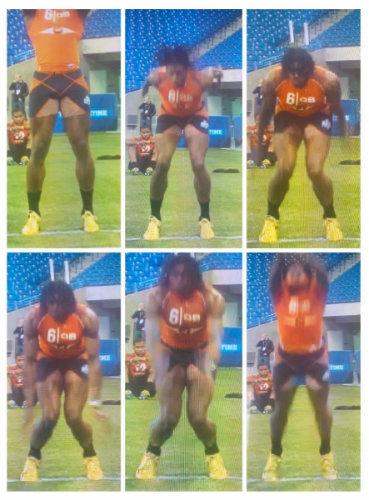 Robert Griffin III's form at the 2012 NFL Combine. He has a long history of injuries.